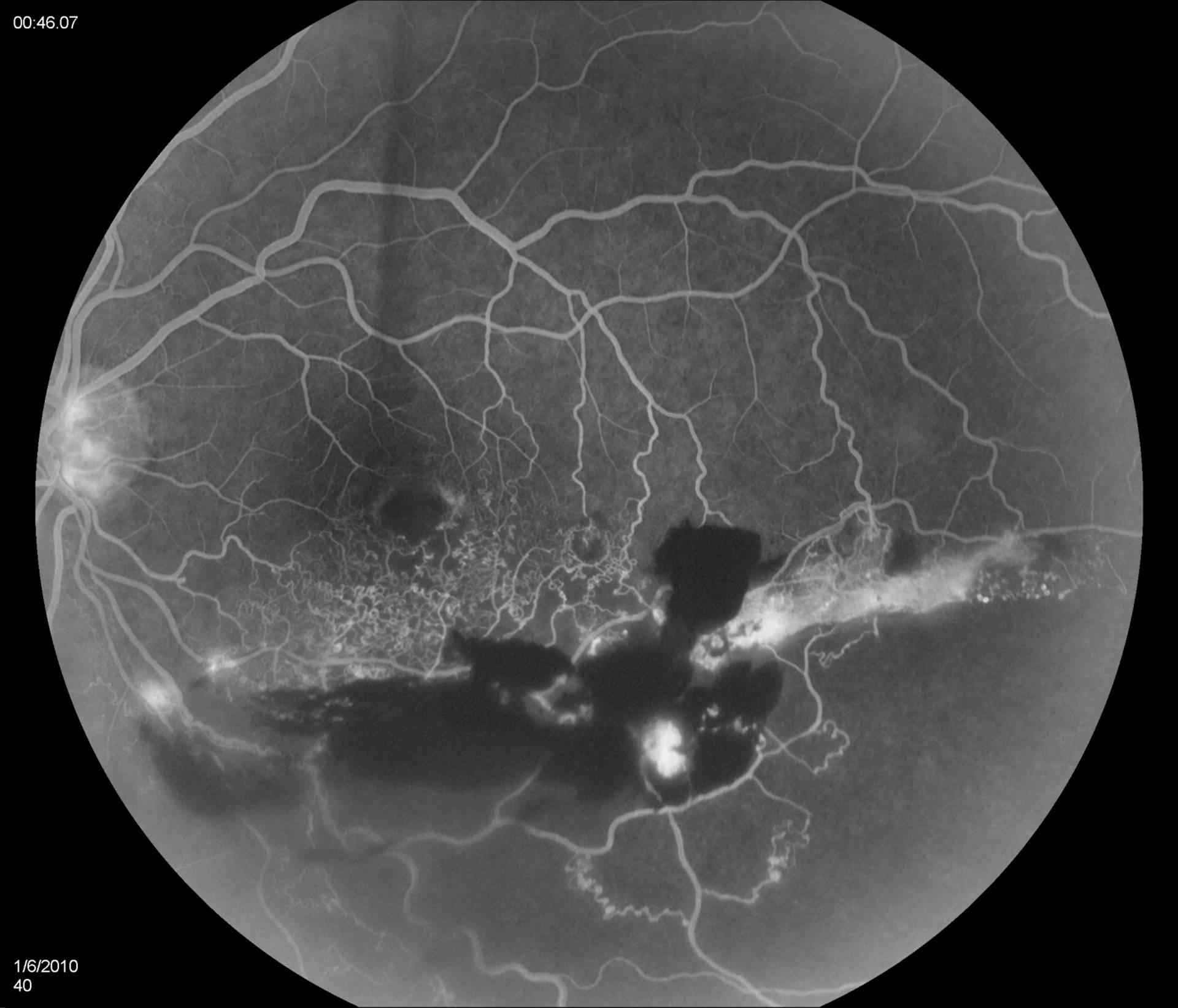 Generic retin online
