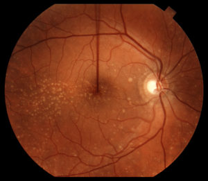 Macular Degeneration with Drusen