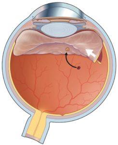 Retinal Tear Retina Specialist Orange County