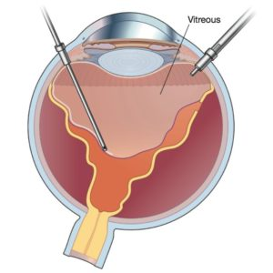 Vitrectomy is a Core Operation of a retina specialist | Orange County | Shahem Kawji MD