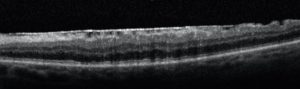 macular pucker OCT retina scan