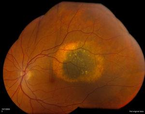 Choroidal Nevus | Benign Retinal Lesion | Shahem Kawji MD Retina Specialist Orange County