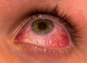 Uveitis | Red Irritated Eyes | Retina Specialist Orange County | Shahem Kawaji, MD