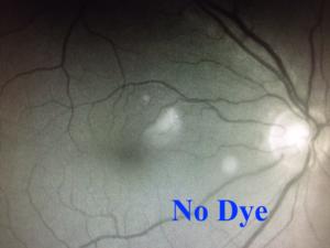 Branch Retinal Artery Occlusion | Fluorescein Angiography | Orange County Retina Specilaist | Shahem Kawji MD