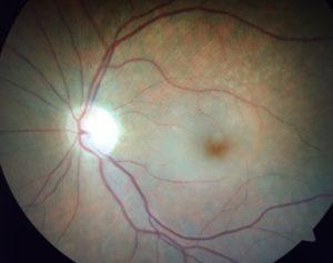 Central Retinal Artery Occlusions CRAO | Orange County Retina Specialist | Shahem Kawji MD